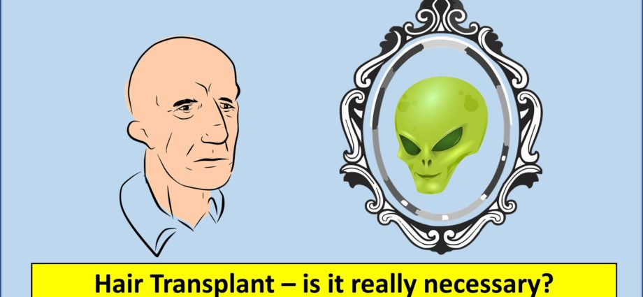 Hair Transplant - why it is necessary and how it helps you to become more attractive